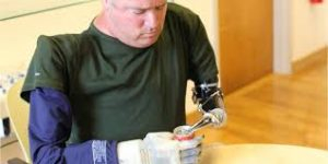 بازوی پروتز DARPA_ ریون مگ